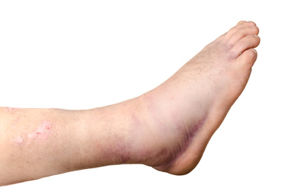 Broken ankle of a person isolated on white background